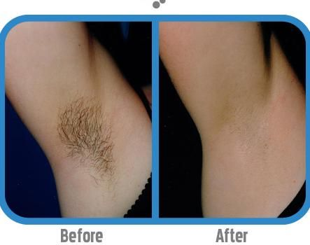 Permanently Remove Unwanted Hair With no Ouch