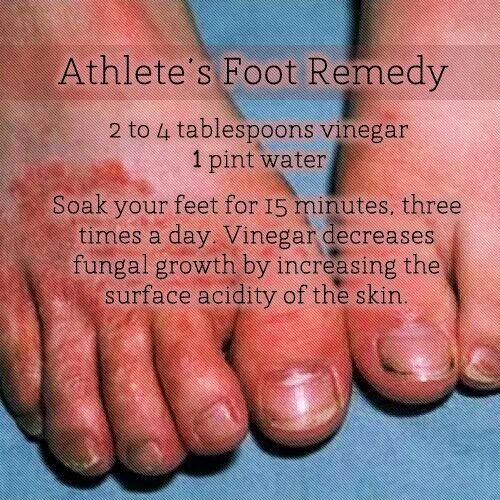 17 Best images about Remedies for Athletes foot on ...