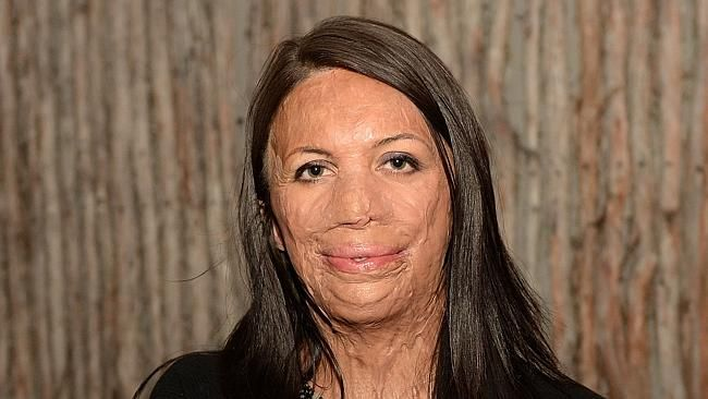Turia Pitt, the Australian athlete's incredible rise to being the cover girl of a magazine. #love #lovestory #lovequotes #relationship #dating #relationshipquotes  #inspirational #gender #wedding #women