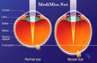 Myopia Causes - 3 Effective Tips to Cure Myopia  Read more: http://www.medimiss.net/2013/12/myopia-causes-3-effective-tips-to-cure.html#ixzz2ty5PTwWU