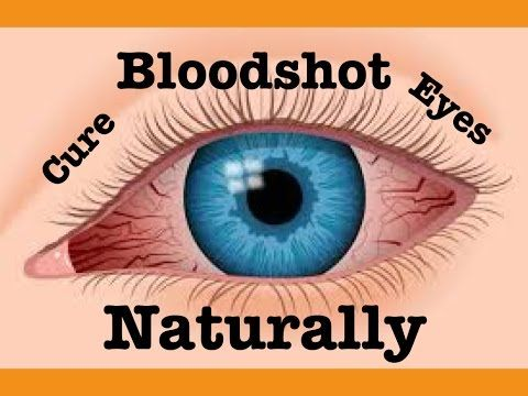✔How to Cure Bloodshot Eyes Naturally & Fast!!! Simple natural remedies for Bloodshot Eyes -  Learn How to Outsmart Insomnia! CLICK HERE! #insomnia #insomniaremedies #sleeplessness Description: ——————- This is how to cure Bloodshot Eyes Fast!!! Simple natural remedies for Bloodshot Eyes, how to get rid of Bloodshot Eyes quickly, homemade remedies for ... - #Insomnia
