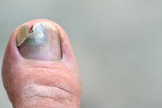 how to treat black toenails
