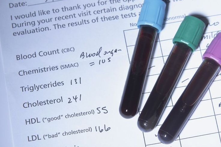 Comparing the Lipid Profile and VAP Cholesterol Tests