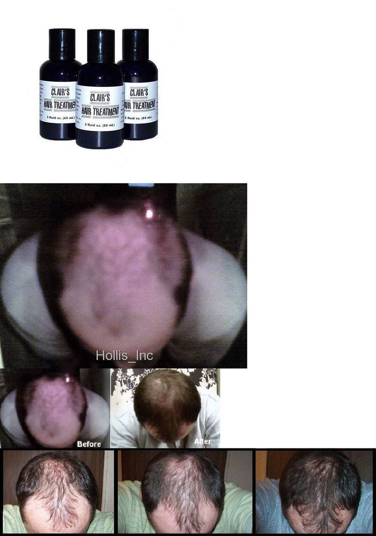 Hair Loss Treatments: The Best Hair Loss Treatment For Men And Women Thinning Hair Alopecia Hairloss BUY IT NOW ONLY: $42.0