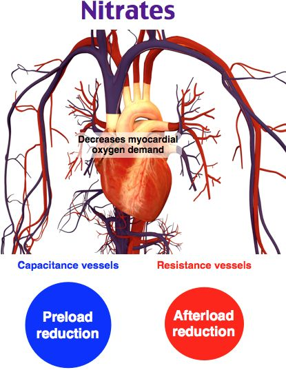 Nitrates should be avoided in patients with one or more of the following: systolic blood pressure less than 90 mm Hg, heart rate less than 50/min, or heart rate greater than 100/min. It should also be avoided in known or suspected right ventricular infarction, in patients who have taken a phosphodiesterase inhibitor for erectile dysfunction within the last 24 hours, in patients with hypertrophic cardiomyopathy or severe aortic stenosis.