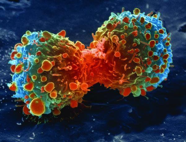 Akciğer kanser hücre bölünmesi,SEM ile çekilmiş gerçek görüntü... (Credit: Steve Gschmeissner/Science Photo Library)