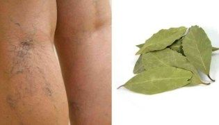 Artigo Cure varizes, alivie cansaço nas pernas e estimule circulação com este tratamento caseiro com louro