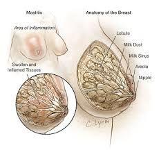 Obat Mastitis Pada Ibu Menyusui QNC Jelly Gamat membuhun bakteri penyebab Mastitis yang sering menyerang ibu menyusui. Mastitis Juga disebut Infeksi Payudara