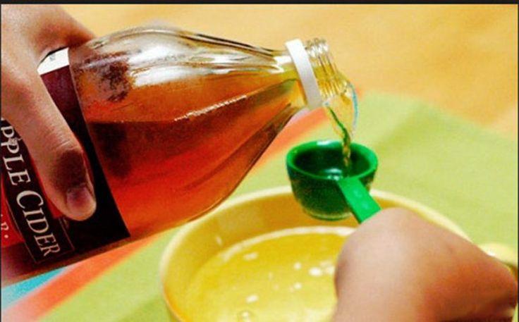 O linguriță de oțet de mere înainte de culcare poate face minuni pentru sănătate! Nu vei mai renunța la acest obicei după ce vei afla despre toate beneficiile! - dr. Andrei Laslău