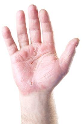 hand eczema picture, picture of hand eczema, picture of eczema, image of eczem
