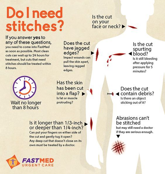Do I need Stitches? If you have deep cuts or puncture wounds in the chest, abdomen or neck, you can use some Chest Seals to treat them, here we explain you everything about this first aid item: http://insidefirstaid.com/personal/first-aid-kit/what-is-and-