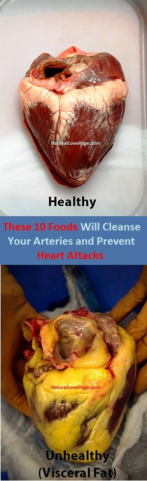 Healthy Food For Heart Blockage Patient