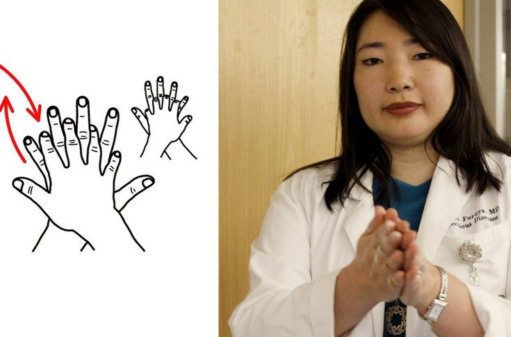 Scientists say that a common technique for applying hand sanitizer, one recommended by the Centers for Disease Control and Prevention, is inferior to an alternative method with twice as many steps.