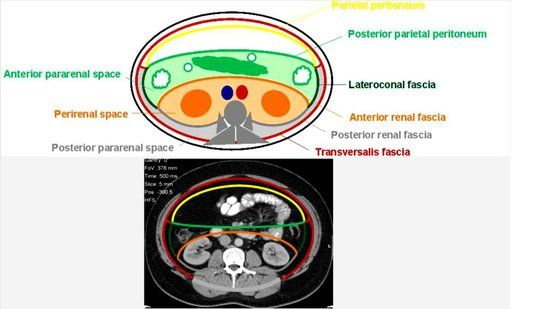 Radiology Essentials 105 : Sectional Anatomy of Retroperitoneal Spaces