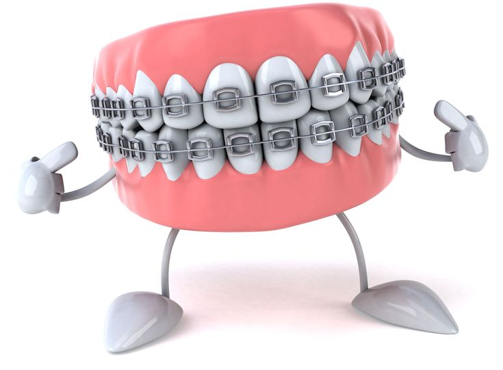 When we are wearing braces first time lots of query come in our mind related to braces cost and price, Few Factors that determine the Cost of Dental Braces in Houston. . If you feel you need to get the braces, don't be scared to call a doctor within Houston and book an appointment today.