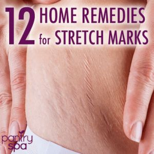 There are numerous expensive creams to remove stretch marks but all it really takes are home remedies that boost collagen production and skin health.