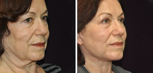 Obtaining Your Own Biological Facelift By Performing Facial Revitalization Exercises