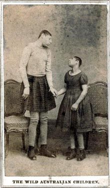 Pinheads were extremely popular freaks with showmen, because of their unusual and primitive appearance. They usually suffered from microencephaly
