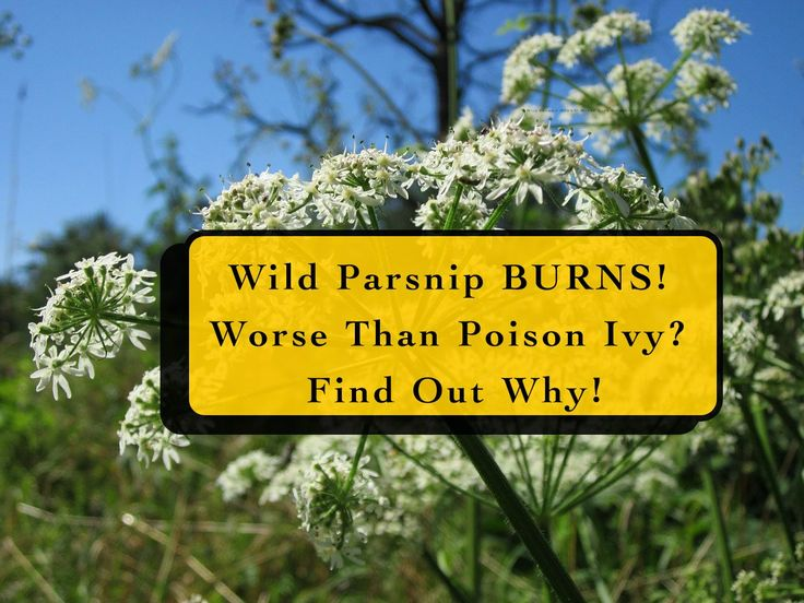 Wild Parsnip burns! Worse than Poison Ivy? That's right. Did you know you can get third-degree burns from a weed that's commonly found in most gardens across America?