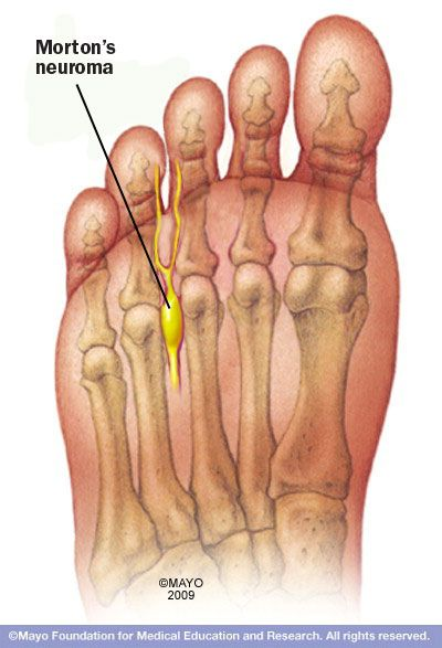mortons toe and relationship to fibromyalgia