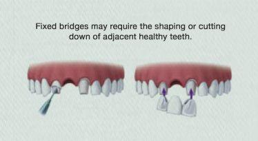 dental implant cost au