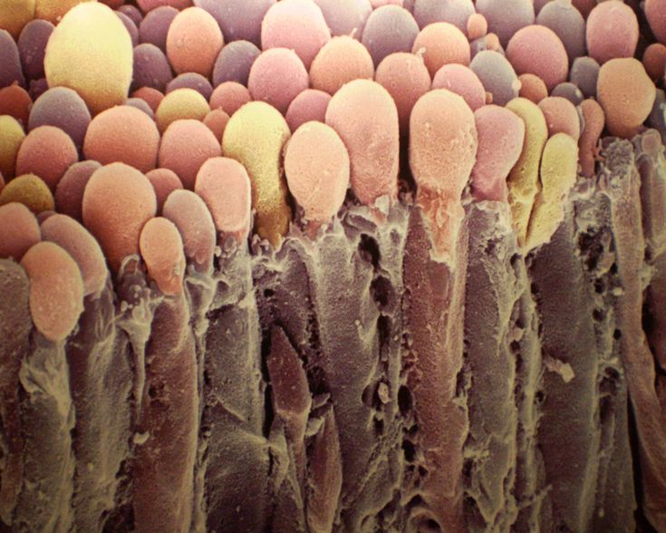These cells line the Choroid Plexus, a layer of tissue that lines the inside of the ventricles of the nervous system.  The swollen tips of these cells secrete the cerebrospinal fluid which bathes the brain in glucose and proteins, and prevents it from collapsing under its own weight.