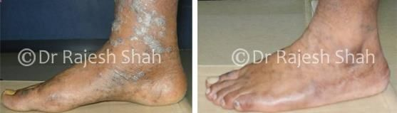 Here we have collection of before after treatment photos of patients treated by Dr Shah for various diseases like urticaria, alopecia areata, vitiligo, psoriasis, lichen planus etc.