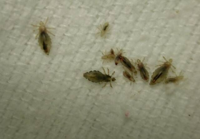 Visit this site http://twitter.com/PeopleGetLice for more information on Can Black People Get Lice. The lice are tiny insects that are produced on the scalps of the human and mammal hairs. If you are terrified of the head lice, there are many ways to detect and to get rid of this problem. Stop asking can black people get lice because the solution is in your hands. If you find this issue, then you need to adopt severe measures. Follow Us: http://www.edocr.com/user/BlackPeopleGetLice