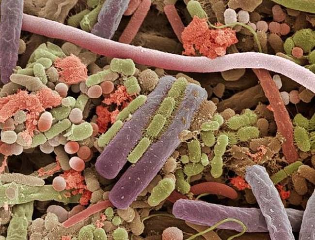 Bacteria on the surface of a human tongue  (from 'Microcosmos,' by Brandon Brill ) Mmmmmmmm, yummy.