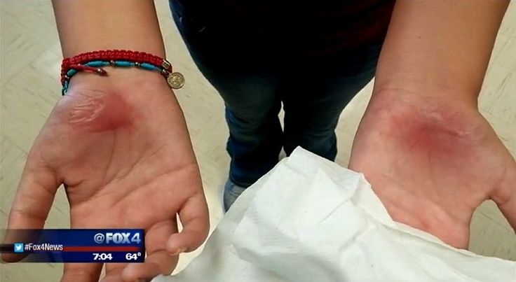 "Girls Late to Class Get a Punishment From Their Teacher That Leaves Their Hands Blistered & Burned. As CBS  reports, when a group of sixth graders at Red Oak Middle School in Red Oak, Texas, were late to their P.E. class, the coach decided to hand out a tough physical punishment. The seven girls were told to ""bear crawl"" across the football field multiple times, shuffling on their hands & feet on the 90 degree turf. By the end of the exercise, the hands of all seven girls were red and…"