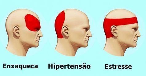 Post traz informações sobre uma técnica utilizada para se livrar da dor de cabeça de forma rápida e eficaz.