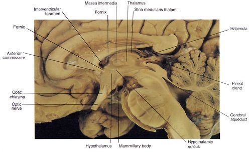 Brain sectioned in the median sagittal plane.