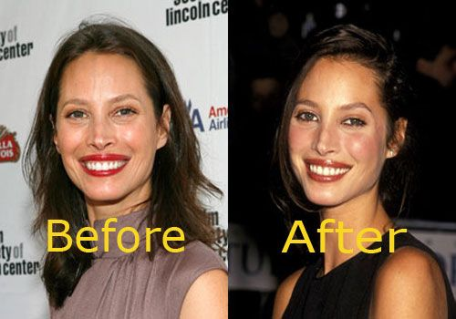 nose plastic surgery | Christy Turlington Nose Job Before and After