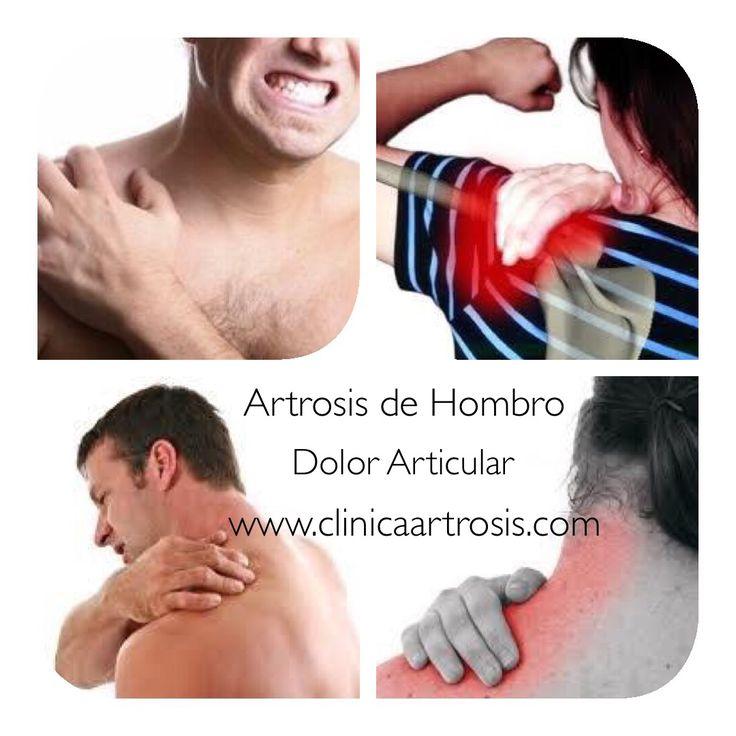 La Artrosis u Osteoartritis en el hombro es una enfermedad crónica de las articulaciones en la que se produce un desgaste progresivo del cartílago articular y de los tejidos circundantes. Visitenos en la Clínica de Artrosis y Osteoporosis en Bogotá - Colombia www.clinicaartrosis.com PBX: 6836020.