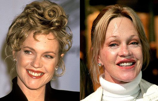 Melanie Griffith's face has been unnaturally evolving over the last 13 or so years and like many who have fallen fowl to the knife, it started with simple lip injections.