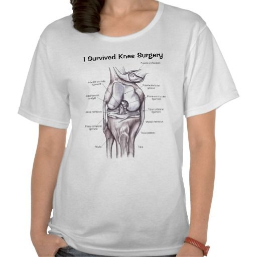 1000 images about gifts for knee surgery on pinterest for Dog t shirt for after surgery