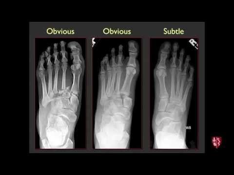 Lisfranc Injury - YouTube