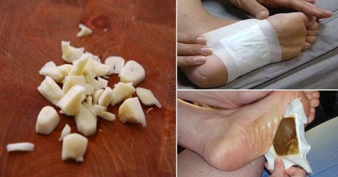 PREPARE HOMEMADE DETOX FOOT PADS AND REMOVE ALL THE TOXINS FROM YOUR BODY OVERNIGHT! Detox foot cushions were long commonplace and utilized by Japanese individuals. Their working depends on their c…