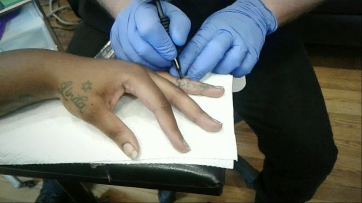 Tattoo Removal, Laser Free, Scar Free & only in Athens, GA