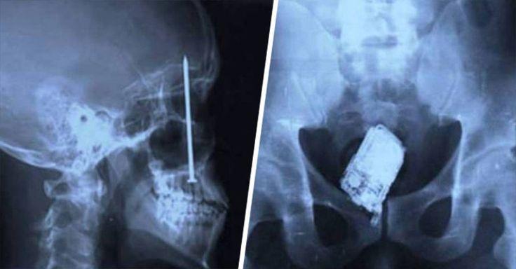 16 imágenes de las cosas más raras encontradas en las radiografías que prueban que existen personas muy extrañas, y que ser técnico radiólogo es divertido.
