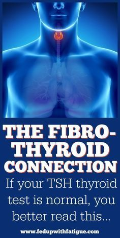 Thyroid conditions are commonly misdiagnosed as fibromyalgia. You can have underlying thyroid dysfunction even with a normal TSH test! Find out how to be properly evaluated for thyroid disorders and their connection to fibromyalgia here!   Fed Up with Fatigue