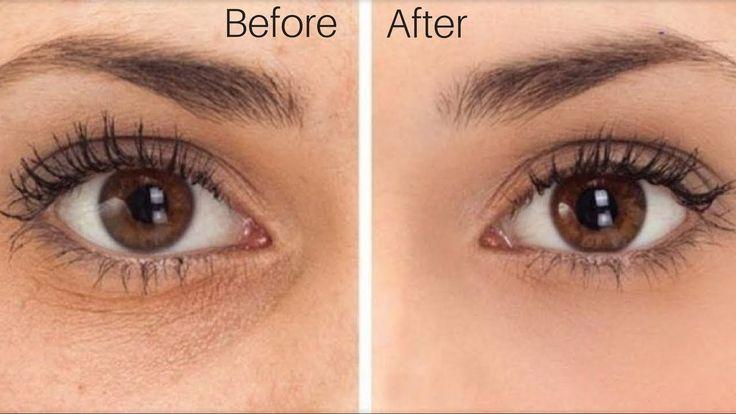 Вот 5 способов убрать синяки, отёки и мешки под глазами.