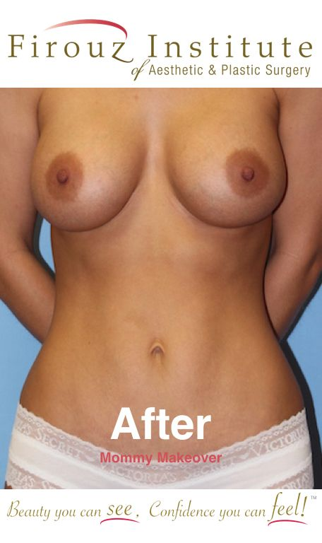 Beautiful results after a Mommy Makeover including breast augmentation, mini-tummy tuck and liposuction of the abdomen and flanks.