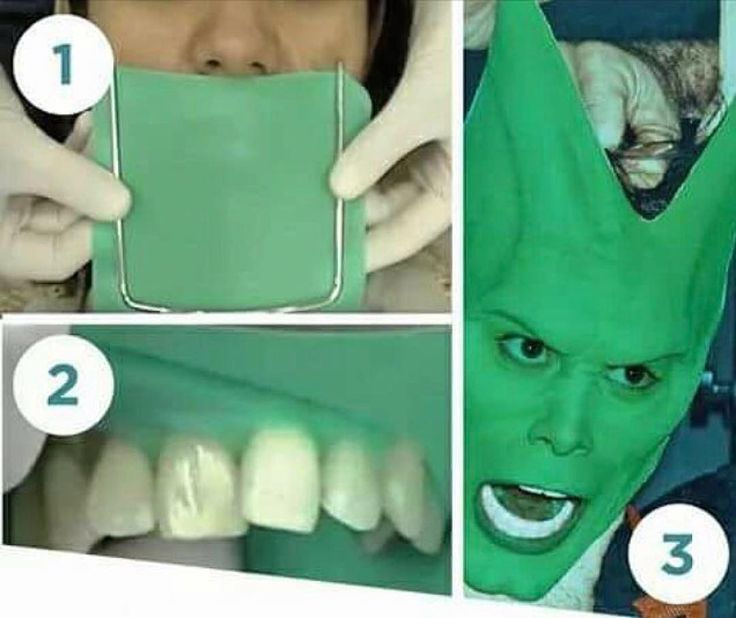 Dentalsurgery Meme Play Free Online Games, Play HTML5