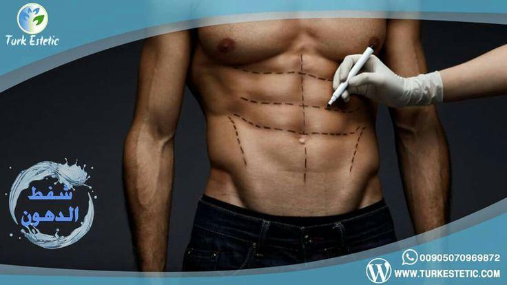 #نحت_الجسم وإظهار #عضلات_البطن #6_Packs باجراء عملية #شفط_الدهون بأحدث التقنيات في مركز Turk Estetic في تركيا اسطنبول 00905070969872 الاستشارة مجانية عبر الواتس اب أوالفايبر