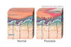 La psoriasis es una enfermedad inflamatoria y crónica de la piel, cuyas causas no se conocen exactamente. Tiene un componente autoinmune y hereditario, aunque éste no es un factor determinante, es decir, no es seguro que una persona con antecedentes familiares de psoriasis vaya a desarrollar la enfermedad. No es contagiosa. Puede afectar a cualquier …