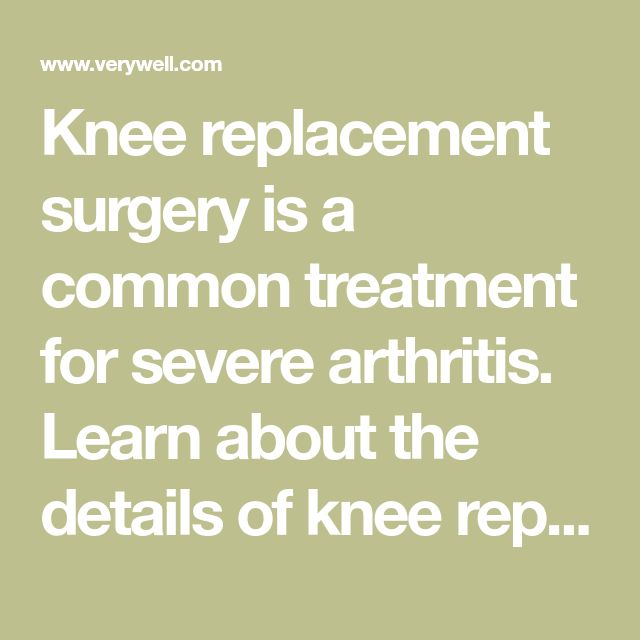 Knee replacement surgery is a common treatment for severe arthritis. Learn about the details of knee replacement and what to expect from this surgery.