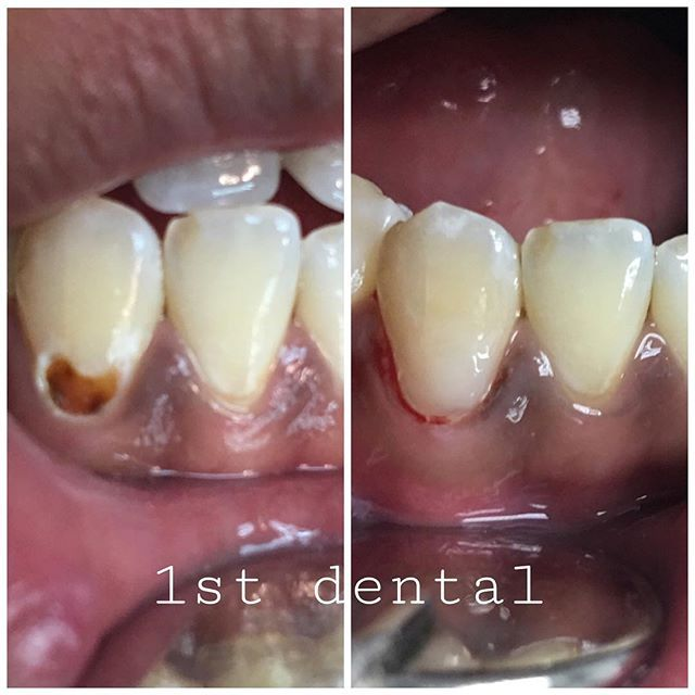 Mejores 89 imgenes de shah alam dentist en pinterest neglect in not brushing certain areas will result in caries that is why its important solutioingenieria Choice Image
