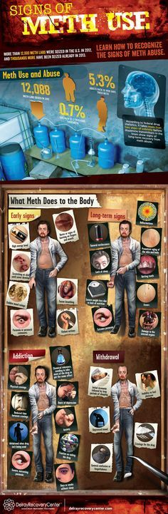 Because of the physical toll meth use has on your body, a meth addiction is one of the most physically devastating drug addictions a person can have. Signs of meth use present themselves at different stages of addiction.