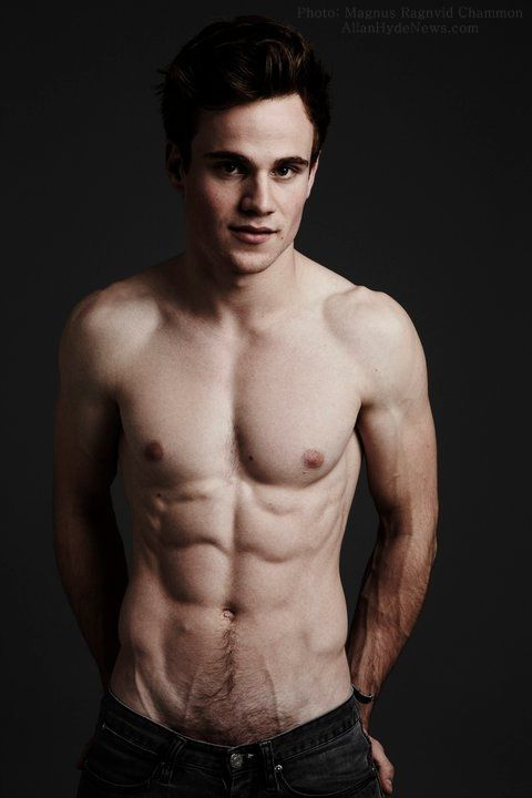 Allan Hyde aka Godric of True Blood.. You couldnt get a razor down there before this photo shoot?